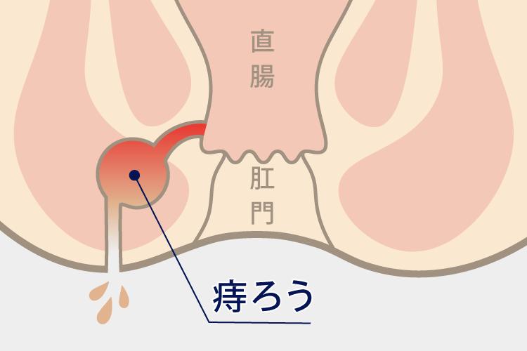 かゆい 肛門 【医師監修】おしりの穴(肛門)がかゆい原因と予防方法